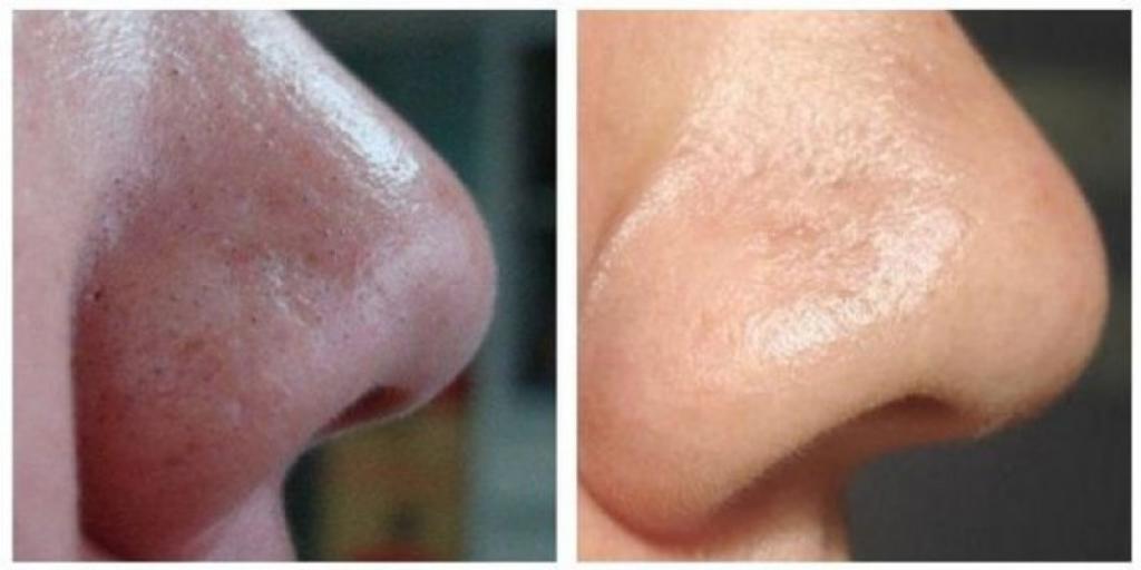 Mrekullia që bën soda bikarbon për zhdukjen e akneve në lëkurën tuaj