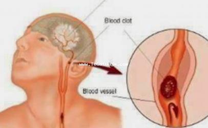 Mpiksja e gjakut ose goditja ne tru