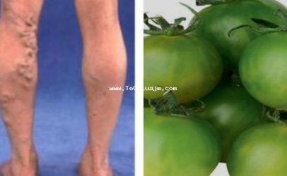 Si ti sherojm venat e zgjeruara me domate te gjelberta