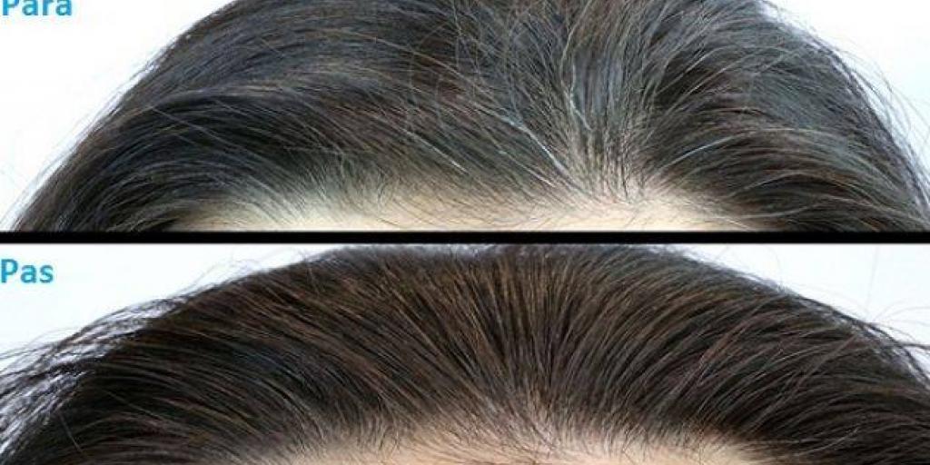 Pija që kthen flokët e thinjura në ngjyrën natyrale