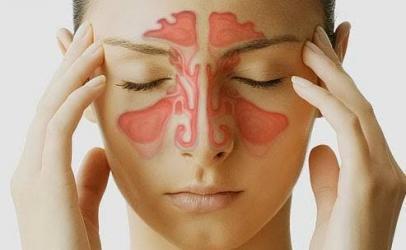 Keni probleme me sinuset ?